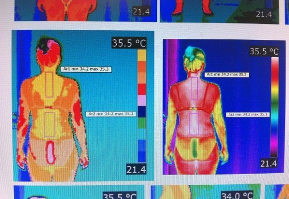La termografía se relaciona con la inflamación y el dolor crónico en pacientes con fibromialgia
