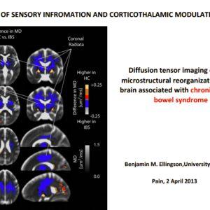 Los pacientes con colon irritable tienen alteraciones a nivel cerebral