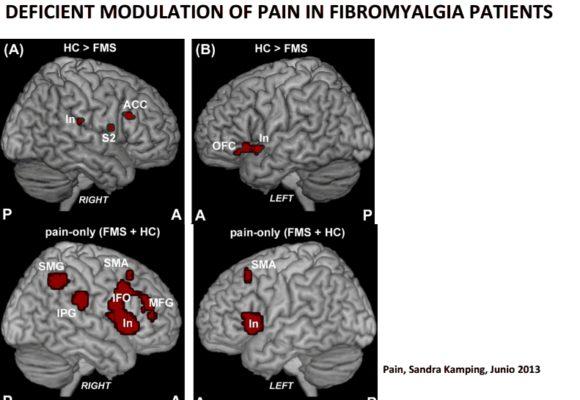 Síndrome de Sensibilidad Central y Fibromialgia