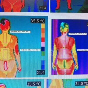Estudio de fibromialgia y alteración de la temperatura corporal