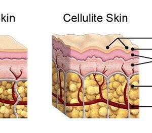 Alimentos que ayudan a combatir la celulitis