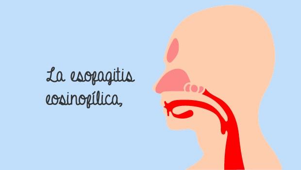 Resultados del TMH en pacientes con esofagitis eosinofílica