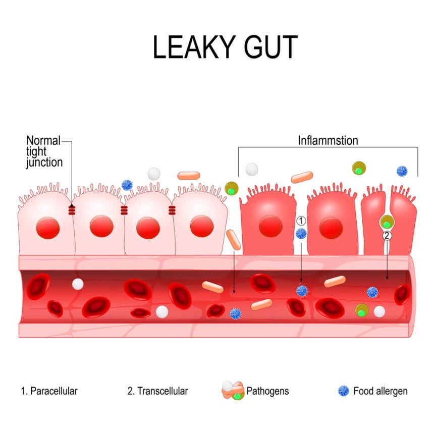 Síndrome del intestino permeable o leaky gut